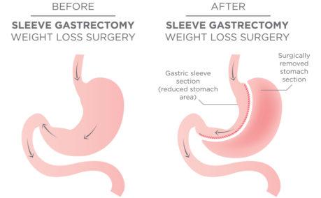 Gastricsleeve